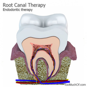 too much root canal therapy endodontic therapy